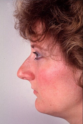 Rhinoplasty for a projecting nose