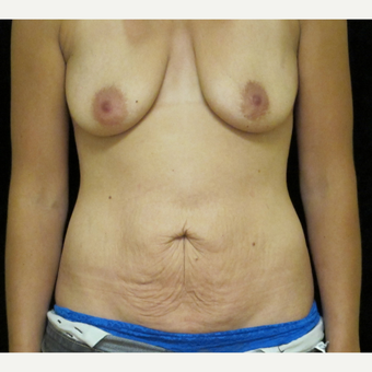 25-34 year old woman treated with Mommy Makeover before 3318655
