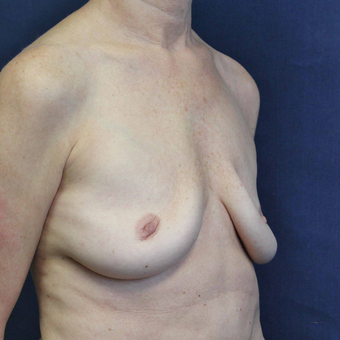 Breast Implant Revision Surgery for Ruptured Saline Breast Implants before 3739076