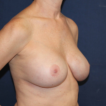 Breast Implant Revision Surgery for Ruptured Saline Breast Implants after 3739076