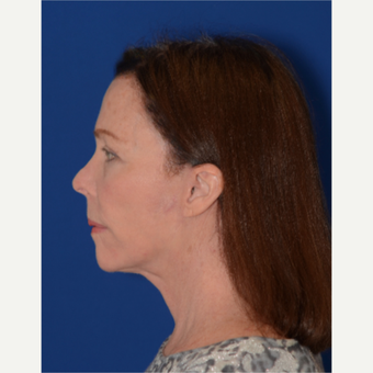 65-74 year old woman with full facial rejuvenation (face, neck, brow lift, upper eyelids) after 3621688