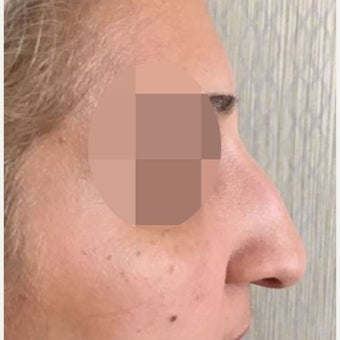 25-34 year old woman treated with Rhinoplasty before 3628262
