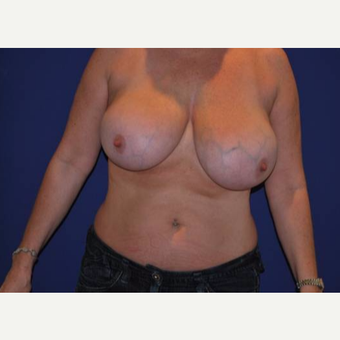 Massive enlargement of breasts and asymmetry of a 34 year old woman. before 2987329