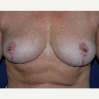 Massive enlargement of breasts and asymmetry of a 34 year old woman. after 2987329