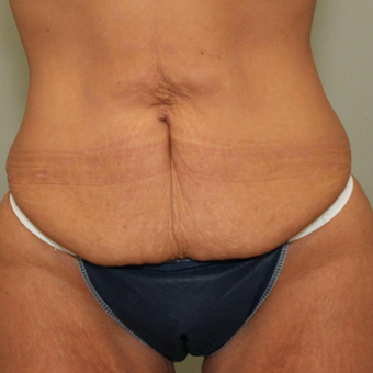 25-34 year old woman treated with Tummy Tuck before 3069709