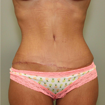 25-34 year old woman treated with Tummy Tuck after 3069709