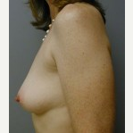 25-34 year old woman treated with Breast Implants before 3108521