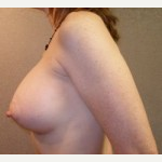 25-34 year old woman treated with Breast Implants after 3108521