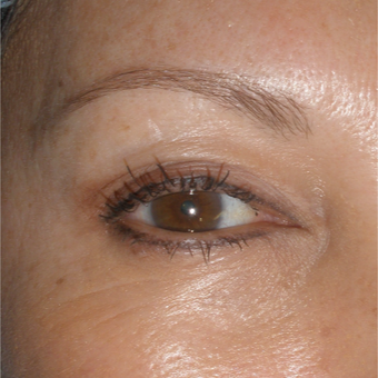 35-44 year old woman treated with Permanent Makeup before 2753794