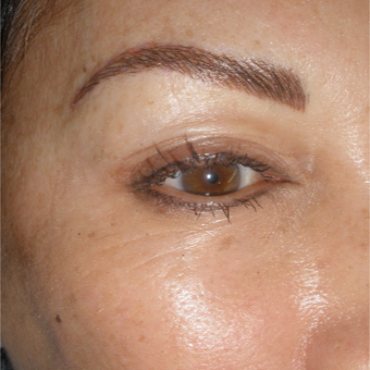 35-44 year old woman treated with Permanent Makeup after 2753794