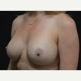 25-34 year old woman treated with Breast Augmentation after 3326868