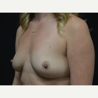 25-34 year old woman treated with Breast Augmentation before 3326868