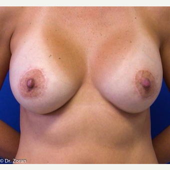 35-44 year old woman treated with Breast Augmentation after 3033246
