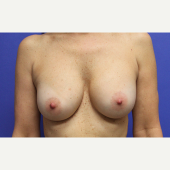 Breast Augmentation Armpit Incision after 3610500