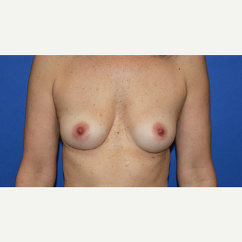 Breast Augmentation Armpit Incision before 3610500