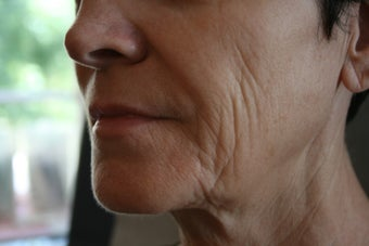 63 Year Old Female 1st treatment with Sculptra Aesthetic before 915996