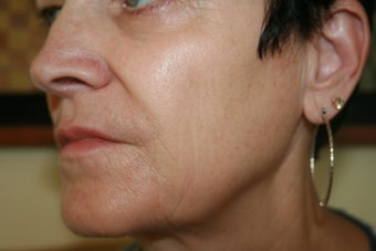 63 Year Old Female 1st treatment with Sculptra Aesthetic after 915996