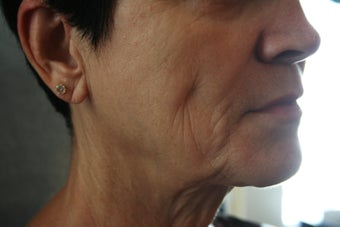 63 Year Old Female 1st treatment with Sculptra Aesthetic 915996