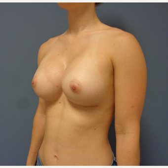 25-34 year old woman treated with Breast Augmentation after 3747013
