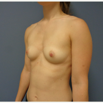 25-34 year old woman treated with Breast Augmentation before 3747013