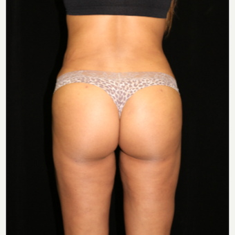 25-34 year old woman treated with Brazilian Butt Lift after 3371973
