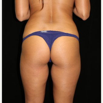 25-34 year old woman treated with Brazilian Butt Lift before 3371973