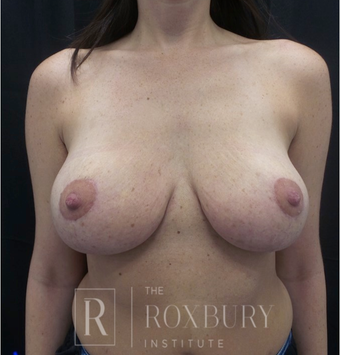35-44 year old woman treated with Breast Lift after 3844332