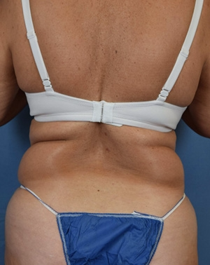 55-64 year old woman treated with Liposuction before 3543913