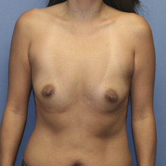 35-44 year old woman treated with Breast Augmentation before 3524509