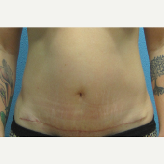 35-44 year old woman treated with Mini Tummy Tuck after 3215455