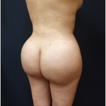 25-34 year old woman treated with Brazilian Butt Lift after 3286159