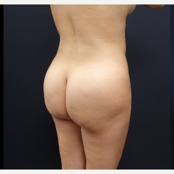 25-34 year old woman treated with Brazilian Butt Lift before 3286159