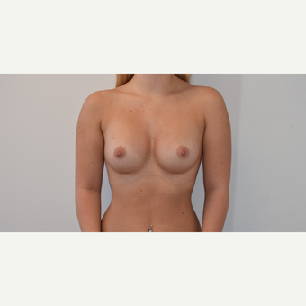 18-24 year old woman treated with Breast Augmentation after 3316990