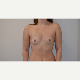 18-24 year old woman treated with Breast Augmentation before 3316990