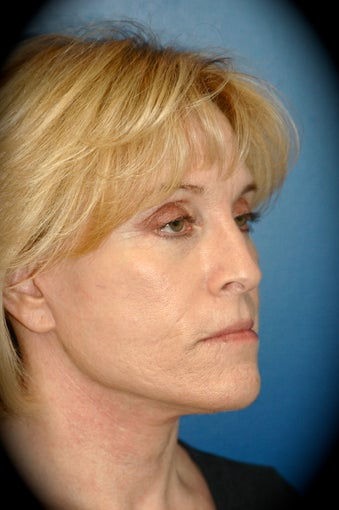 Laser Skin Resurfacing after 1016141