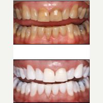 45-54 year old man treated with Teeth Whitening before 2885124