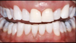 45-54 year old man treated with Teeth Whitening after 2885124