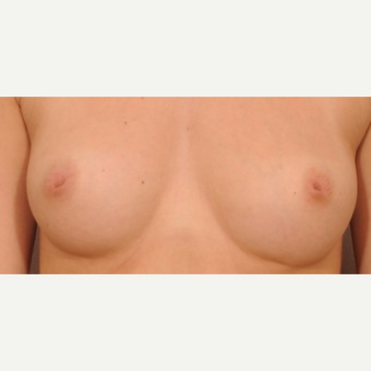 23 year old woman treated with Nipple Surgery