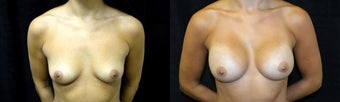 30 year old woman treated with Breast Augmentation before 2990224