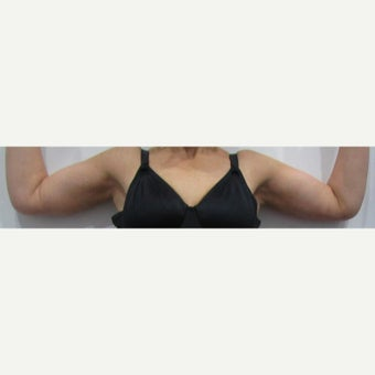 49 year old woman treated with an arm lift after massive weight loss after 2550306