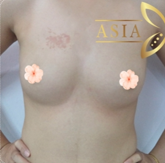 35-44 year old woman treated with Breast Augmentation before 3766025