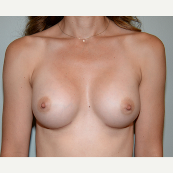 35-44 year old woman treated with Mentor Breast Implants after 3294868