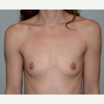 35-44 year old woman treated with Mentor Breast Implants before 3294868