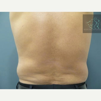 55-64 year old man treated with SculpSure after 2502377