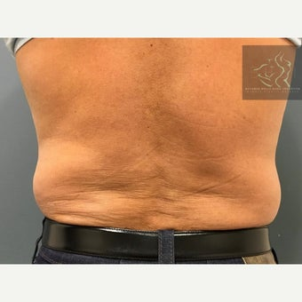 55-64 year old man treated with SculpSure before 2502377