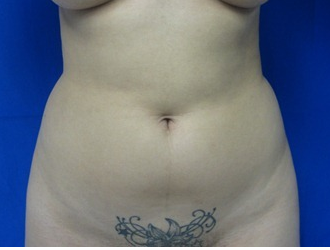 Liposuction before 943357