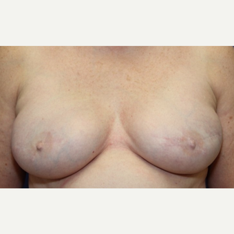 63 year old woman with a bilateral breast reconstruction and Allergan Silicone Implants after 3180907