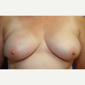 63 year old woman with a bilateral breast reconstruction and Allergan Silicone Implants before 3180907
