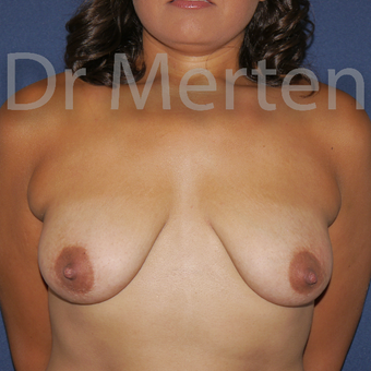 25-34 year old woman treated with Breast Lift with Implants before 3592523