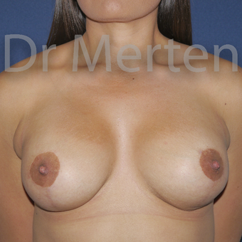 25-34 year old woman treated with Breast Lift with Implants after 3592523